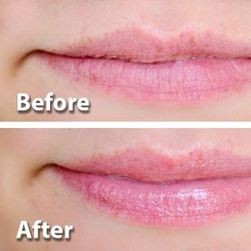 Vaseline dưỡng môi hộp thiếc Rosy Lips with Rose and Almond Oil 20g giá sỉ