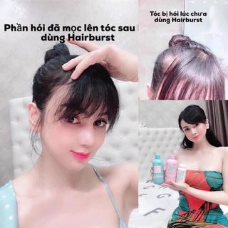 Dầu gội xả Hair Burst giá sỉ